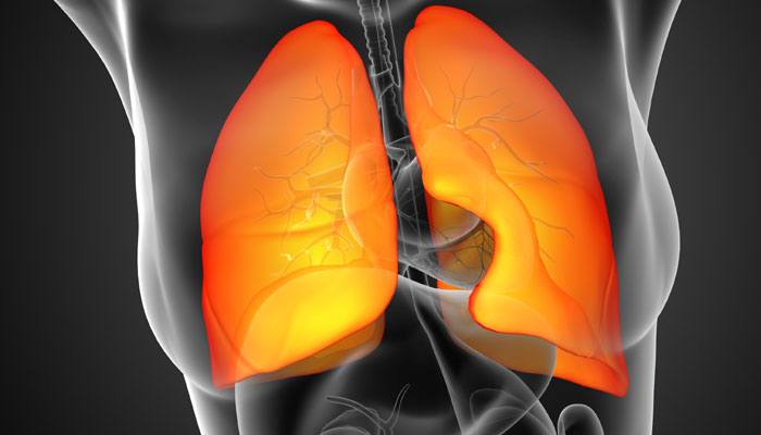 New drug beats chemotherapy in fight against advanced lung cancer