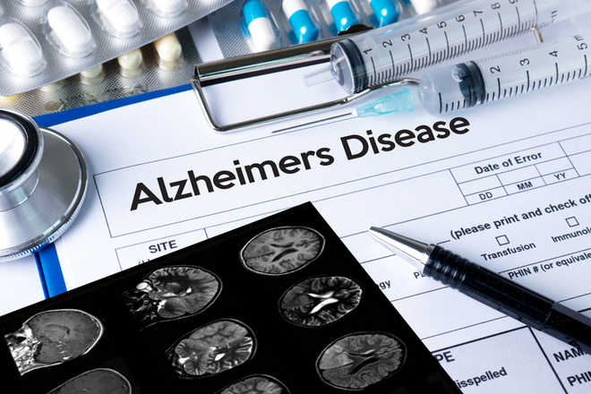 New test may predict onset of Alzheimer's